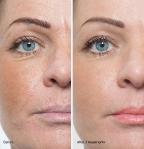 before and after microneedling silktouch med spa 290x300 1