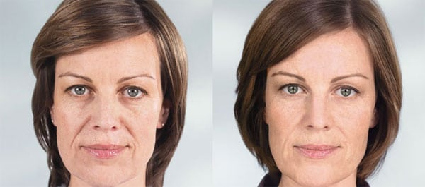 sculptra aesthetic before after silk touch med spa boise2